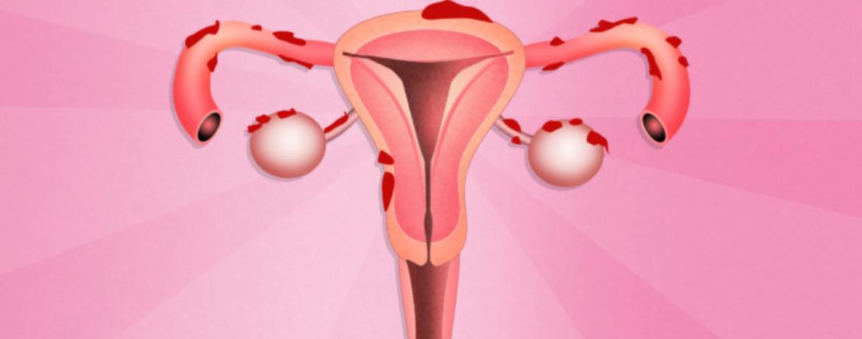 Wat is endometriose?